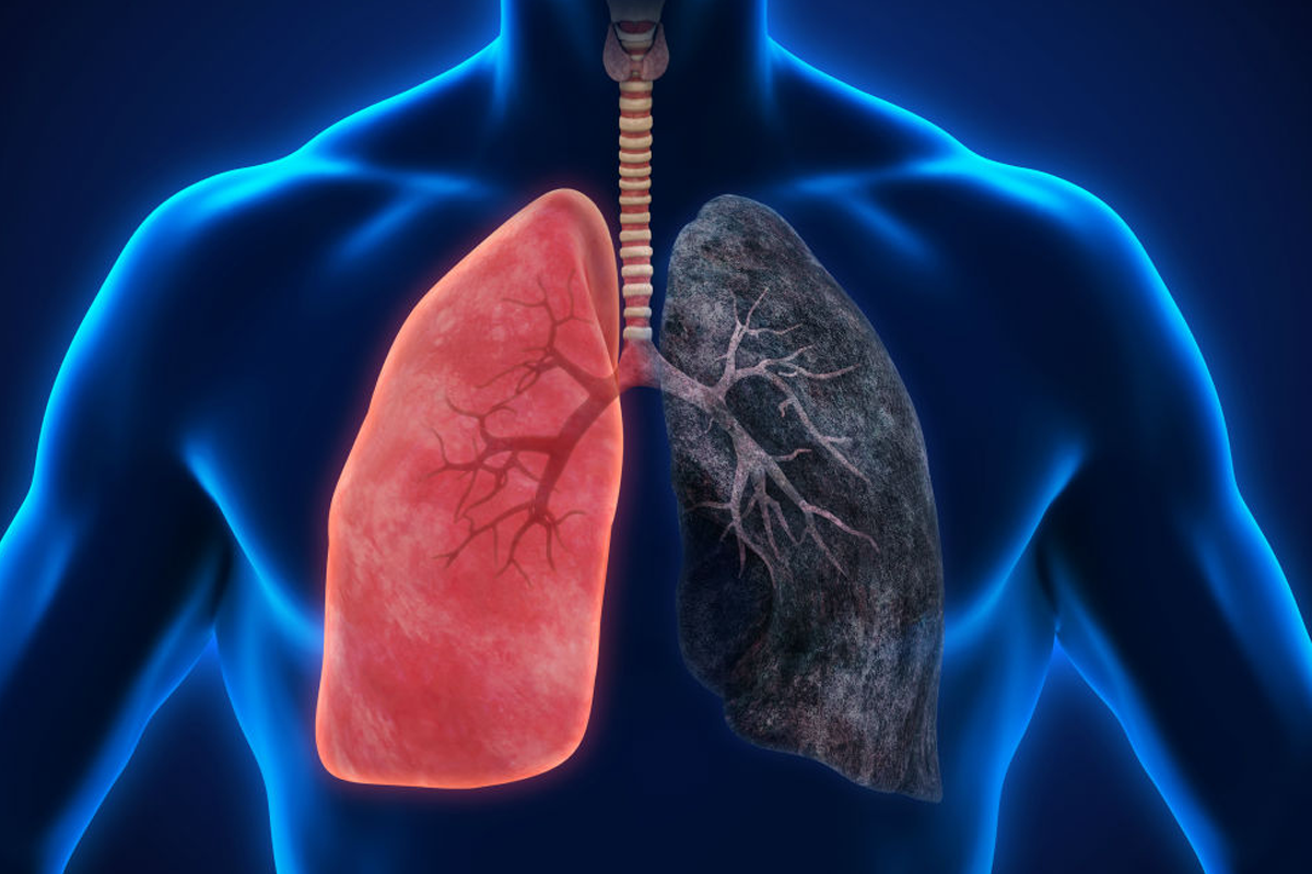 Here's how cigarette smoking can affect your lungs